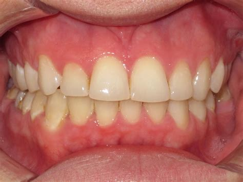healthy gums simple tips for healthier gums health spikes