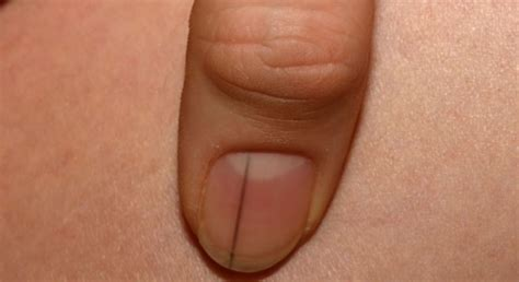 dark line on fingernail black line on nail thin dark line on thumb nail what it