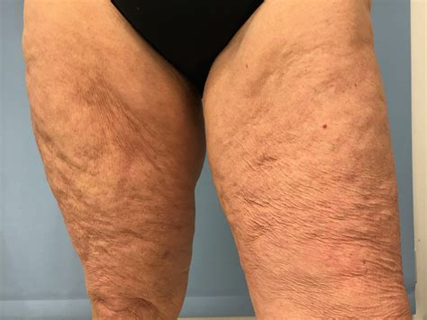 knee lift surgery before and after liposuction scars thighs www pixshark com images