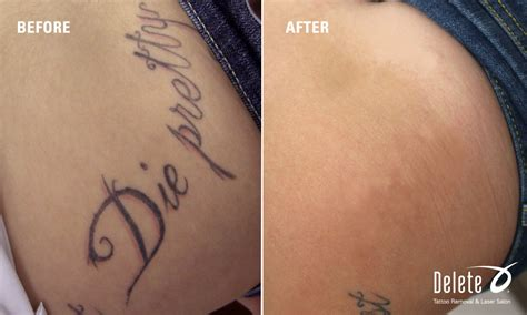picoway tattoo removal in phoenix fast tattoo removal