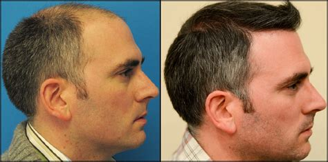 30000 hair graft cost dr feller hair transplant cost om hair