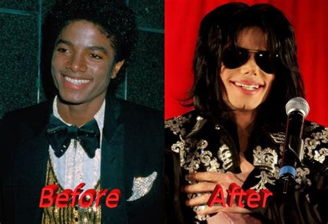what was wrong with michael jackson michael jackson plastic surgery gone wrong