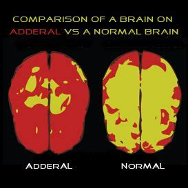 Do You Detox From Adderall by Adderall Addiction Smart Drugs Not The Smart Choice Http