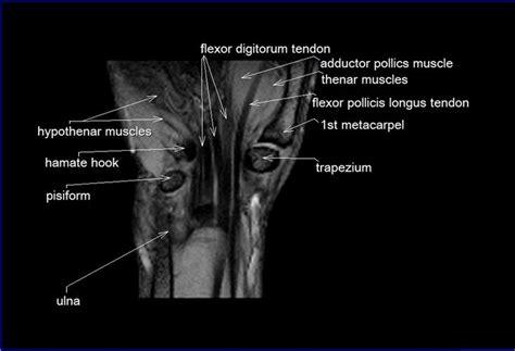 Cross Sectional Anatomy Study Guide by Mri Wrist Coronal Anatomy Wrist Tendon And Ligaments
