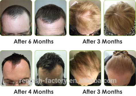 tc plus for bald spot and thinning hair if you have thinning hair but not aggressive balding scalp