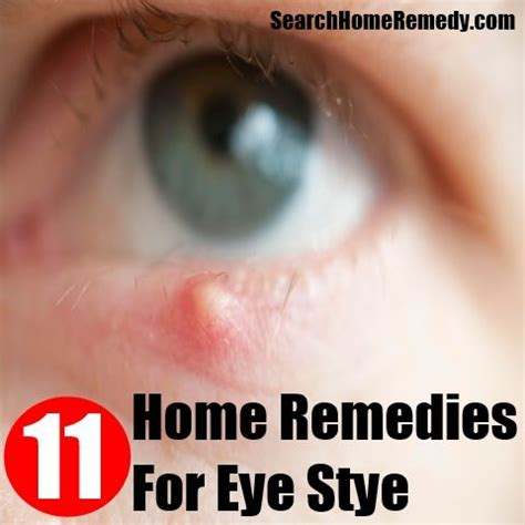 50 best images about stye relief on