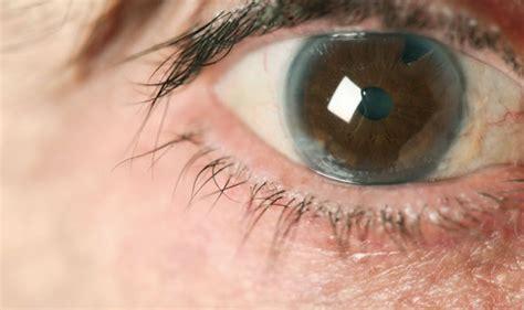 golden retriever pigmentary uveitis treatment foggy spot on eye hairsstyles co