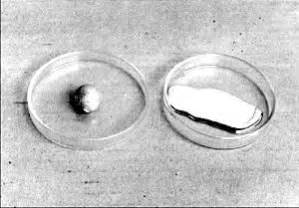 lade al mercurio origen amalgamas dentales qu 237 micos t 243 xicos