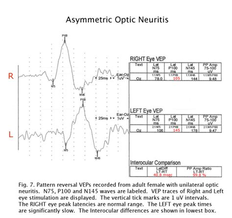 pattern reversal evoked potentials vep test for eyes decorativestyle org