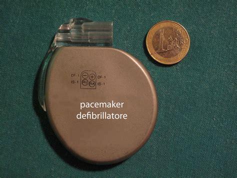 defibrillatore interno andrea limiti cardiologo ostia