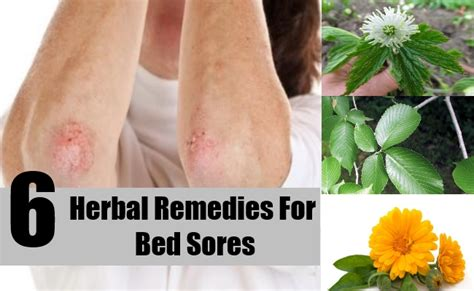 treatment for bed sores 6 effective herbal remedies for bed sores how to treat