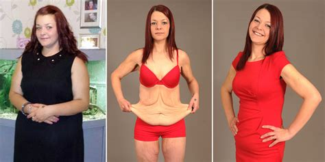 flabby skin 60 year female bride left with excess skin after losing 9 stone for