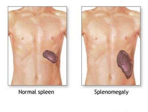 where is your spleen located in your diagram splenomegaly causes symptoms diagnosis and treatment