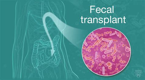 Stool Transplant C Diff by Fecal Transplants Need Better Regulation Experts Say