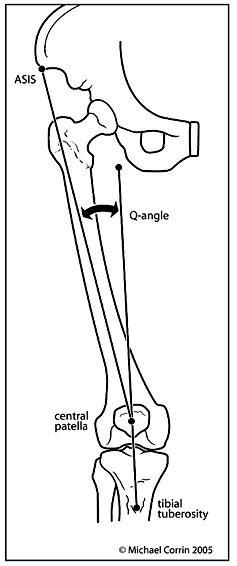 Patellar Dislocation - OrthopaedicsOne Clerkship