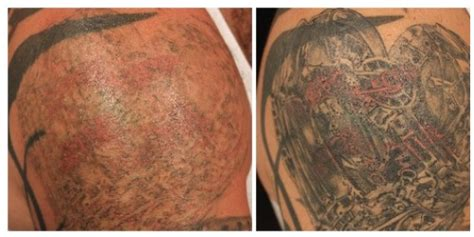 tattoo removal london deals tattoo removal london picosure tattoo removal
