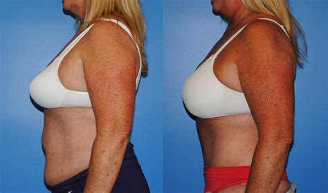 c section tummy tuck combo abdominoplasty blog