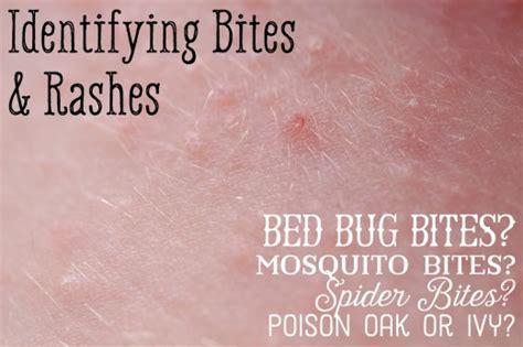 mosquito bed bug spider bite comparison