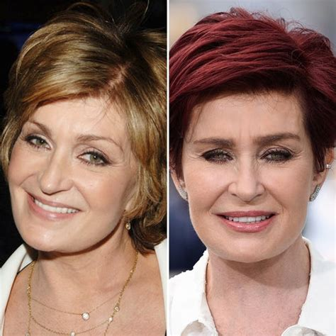 celebrities who have had a neck lift 10 popular celebrities who have had facelift
