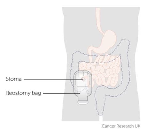 how to change a colostomy bag diagram if you need an ileostomy for bowel cancer cancer research uk