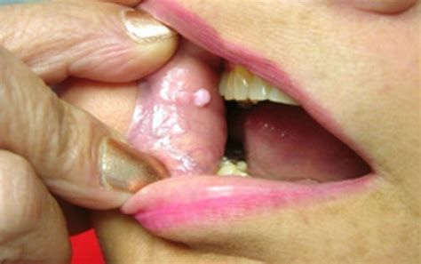 Fibroma White Raised Spot On Inner Lip | white spots on lips causes pictures lower upper inside lip