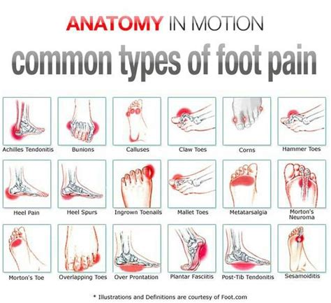 tattoo pain scale foot the 25 best foot pain chart ideas on pinterest foot