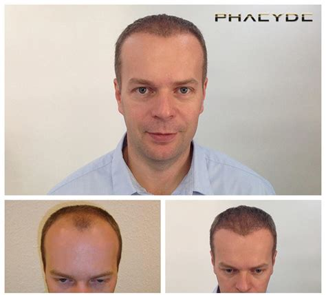 fue results with short hair hair transplantation and hair pigmentation before after