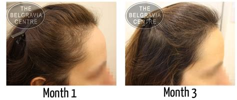 rogaine for women before and after photos what s the difference between belgravia minoxidil and