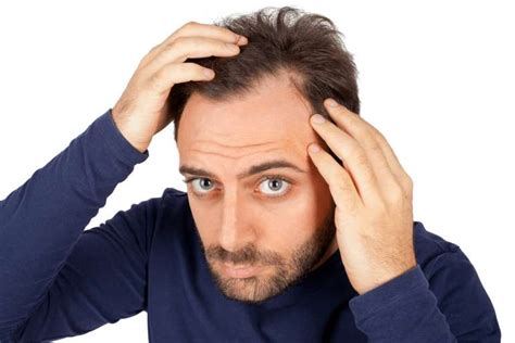 Goes Bald by How To Prevent And Regrow A Receding Hairline The Idle