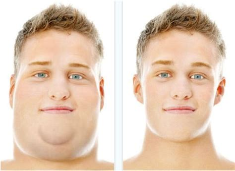 women fat necks how to get rid of neck fat