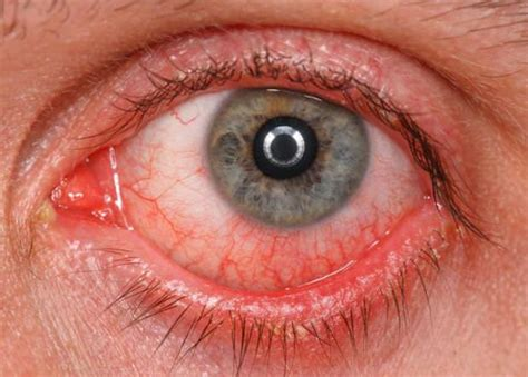 how to treat eye infection at home home remedies to treat eye infection