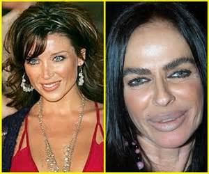 Before Surgery 25 Plastic Surgeries Wrong