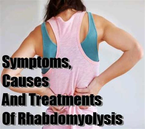 rhabdomyolysis symptoms causes and treatments major