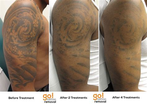 laser tattoo removal sleeve stellar results on this half sleeve after 4 laser
