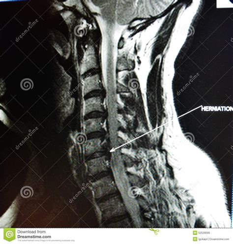 Mri Pictures Of The Spine