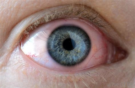eye irritation what are the key components of an alkaline battery