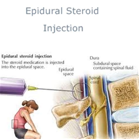 how long does a spinal block last for c section epidural nerve root facet joint block injections lies