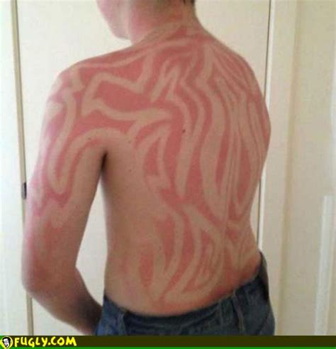 sunburn tattoo fugly pictures page 4523