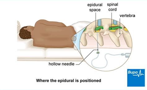back pain after spinal block c section epidural for surgery and pain relief health bupa uk