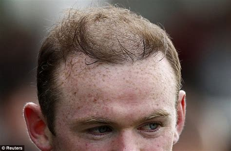 bad hair transplants wayne rooney bad hair day during england training daily