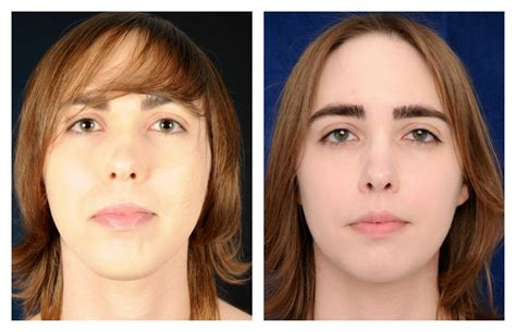 facial masculinization surgery mia before and after facial feminization surgery 2pass