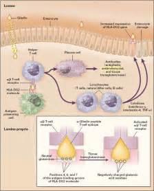 celiac disease symptoms diagnosis and treatment