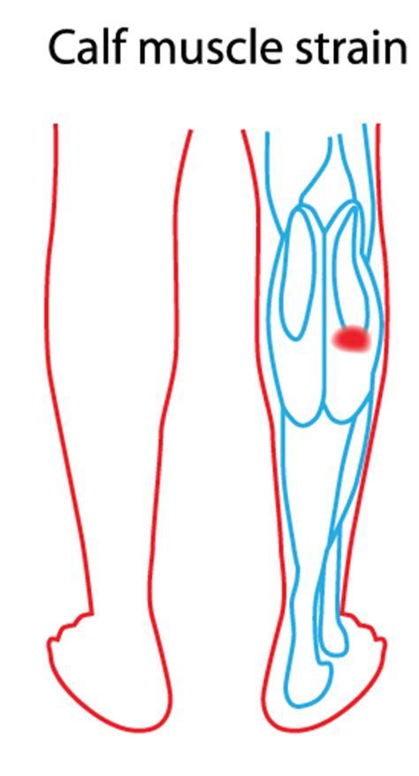 calf diagram calf strain