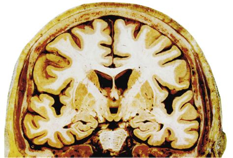 gray matter gray matter and white matter in the brain