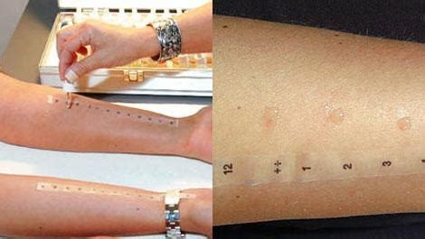 patch test alimenti la differenza tra allergia e intolleranza alimentare oukside
