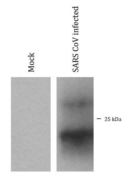 anti-SARS-CoV M protein antibody (ARG54884) - arigo
