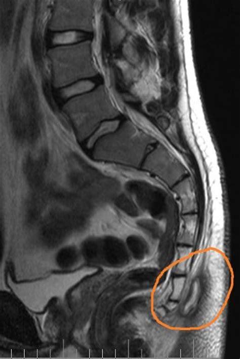 pilonidal cyst mri epithelial coccygeal course pilonidal cyst