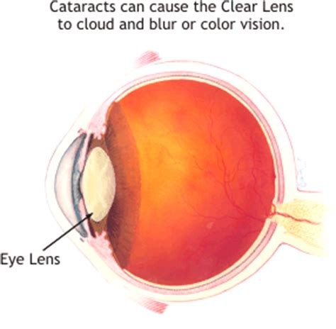 your own finding clear vision in the age of indoctrination books cataracts and eye surgery torrance optometry