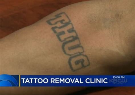 tattoo removal alabama immigration enforcement spurs removal boom
