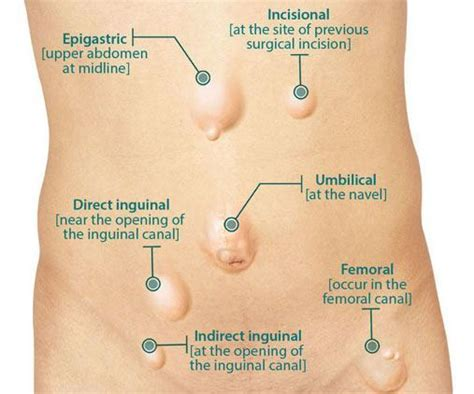 direct  indirect inguinal hernia holistic hernia remediation